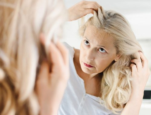 What You Need to Know About Hair Loss During Menopause